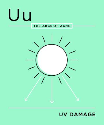 U-tia-UV